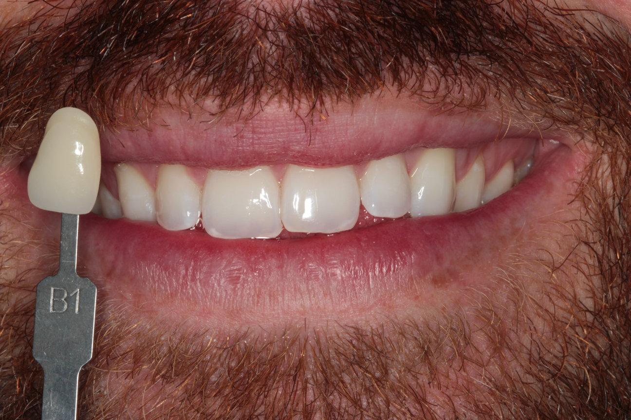 Teeth whitening lewisham